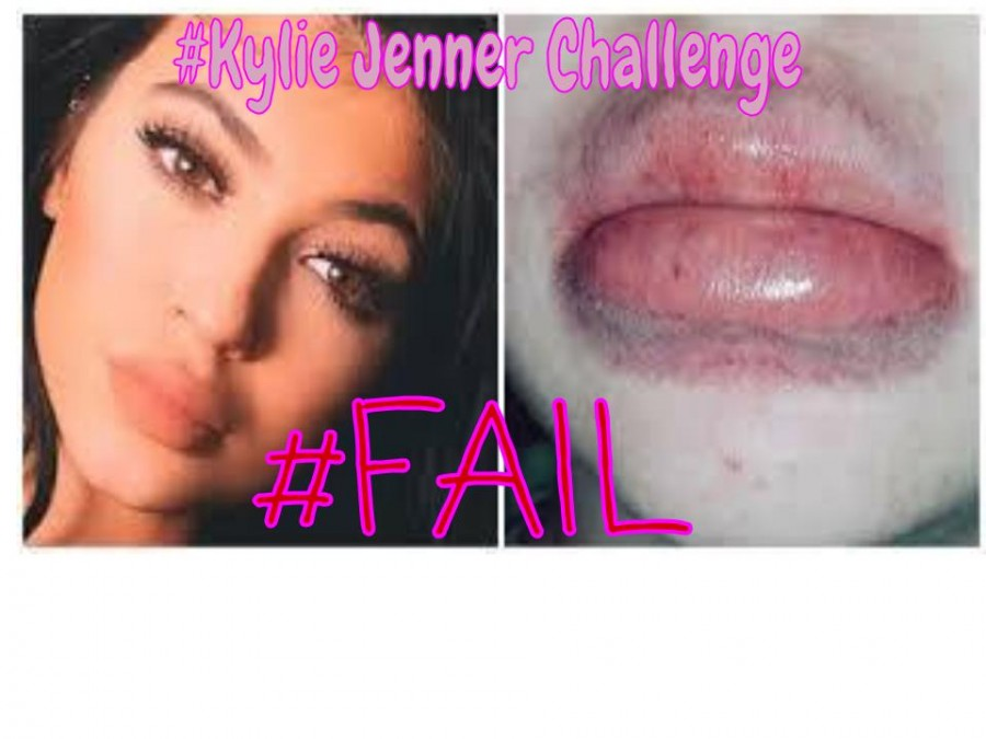 The Kylie Jenner Challenge: A Big Mistake